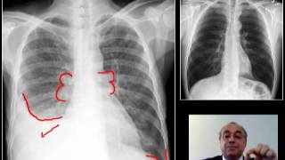 X RAY CHEST (FAST REVIEW) - Costophrenic angle