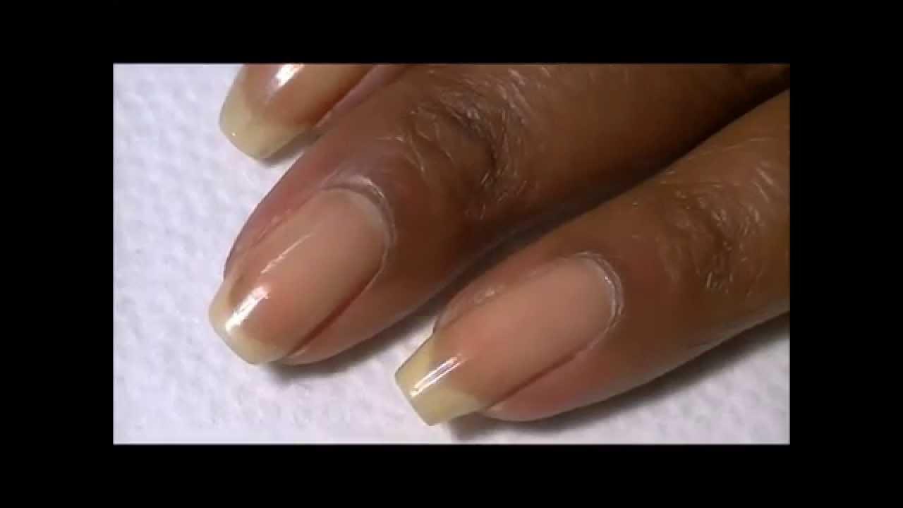 Broken Nail Growth Update-Week 3! - YouTube