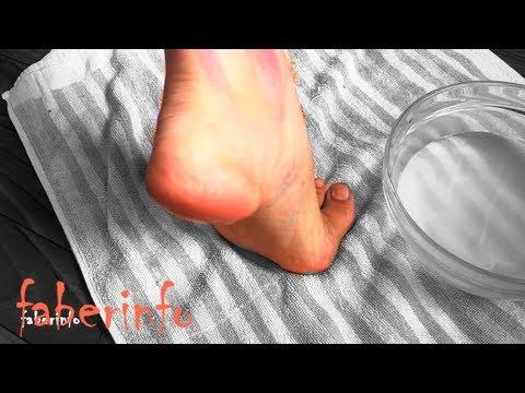 Лечение натоптышей сухие мозоли » Ваш доктор Айболит