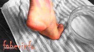 видео Лечение потрескавшихся пяток в домашних условиях.