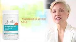 hqdefault - Skinb5 Acne Control Capsules