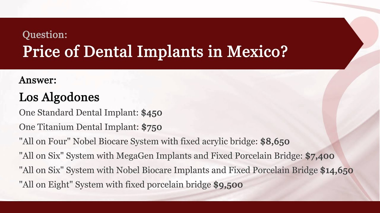 Best Dental Implants Cost in Mexico | PlacidWay Answers ...