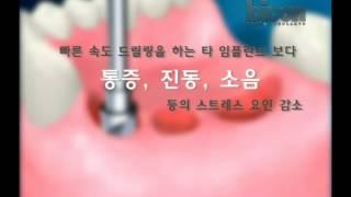 바이콘임플란트시술과정