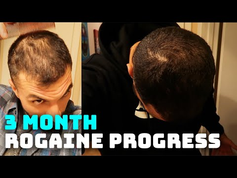 3-month-rogaine-results-and-progress-(minoxidil)
