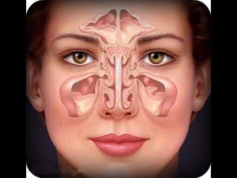 Руководство по лечению хронического синусита