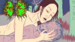 Infected Gastroenteritis - Romantic Necrophiliac Desires