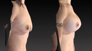 Breast Enhancement 3D Before and After-49