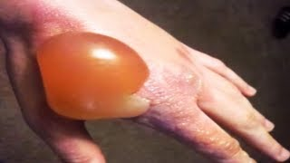 World's Largest Blisters!  Medical Case Study with RESTMORE thumbnail