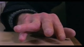 Dislocated Finger - Bizarre ER