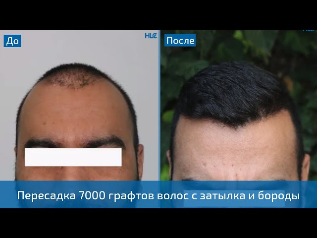 Невероятный результат пересадки 7000 графтов волос мужчине!