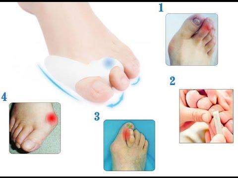ессентуки при подагре. коррекция косточек на ногах