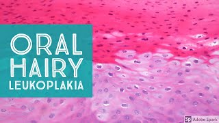 Oral Hairy Leukoplakia...Explained by a Dermatopathologist