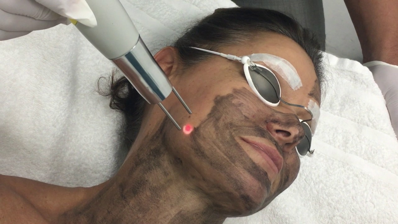 Carbon Laser Hollywood Peel