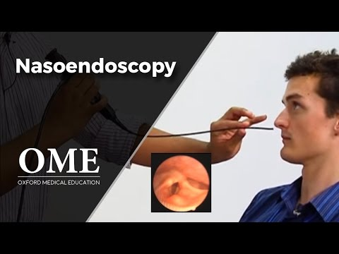 Nasoendoscopy (Nose Examination) - ENT