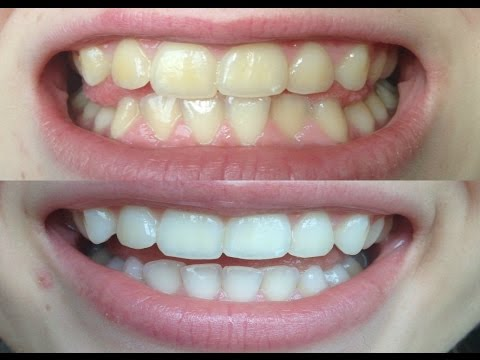 How I whitened my VERY yellow teeth! (WORKS!) BEFORE AND AFTER!