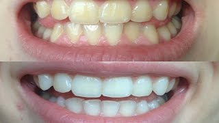 How I whitened my VERY yellow teeth! (WORKS!) BEFORE AND AFTER!(, 2015-04-29T12:44:50.000Z)