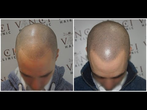 Frisur glatze simulieren
