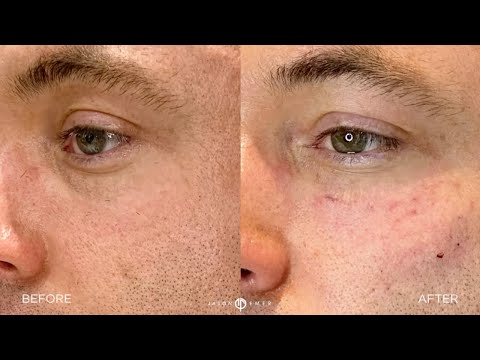 Patient Story | Male Facial Sculpting | Undereye Filler | West Hollywood, CA | Dr. Jason Emer