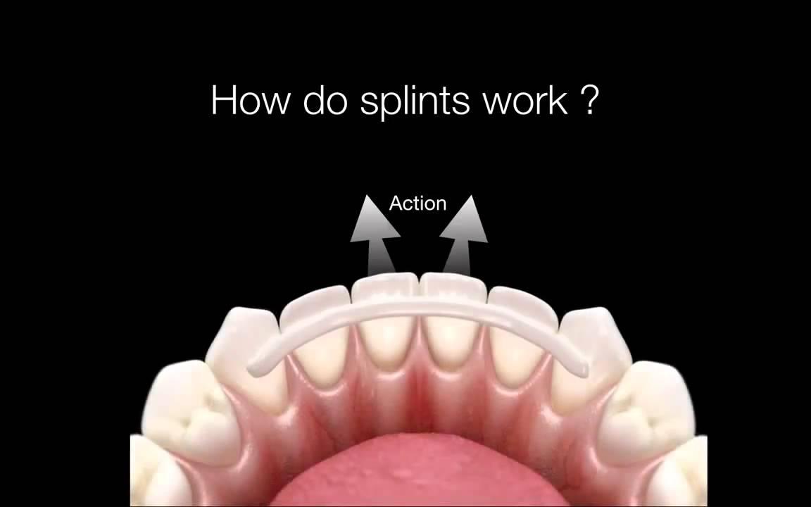 How Do Dental Splints Work Youtube