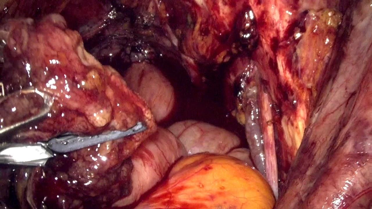 erezione progressivamente cistectomia radicale