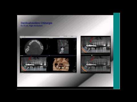 KaVo Webinar: Therapeutische und wirtschaftliche Integration von DVT Geräten / Abrechnung GOZ 2012