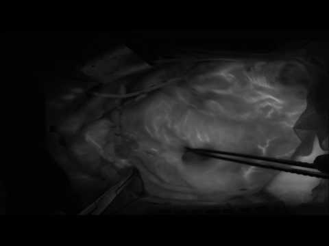 SPY Elite Imaging in Coronary Artery Bypass Graft Surgery