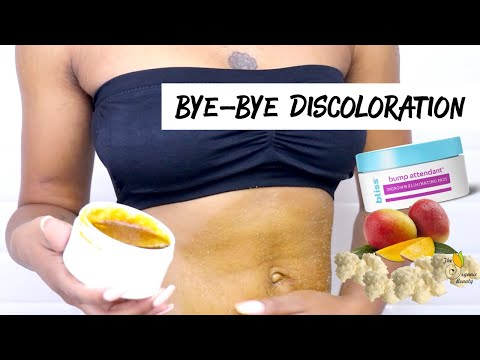 Get Rid Of Bikini Bumps & Discoloration  Easy Sugar Scrub + Tips