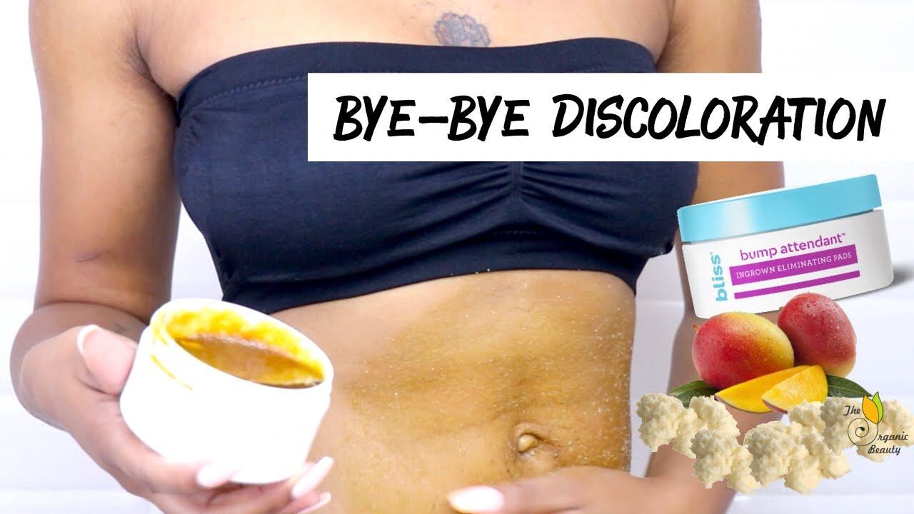 Get Rid Of Bikini Bumps Discoloration Easy Sugar Scrub Tips