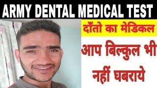 Indian Army Teeth Medical Test In Hindi   Army Dental Medical Test