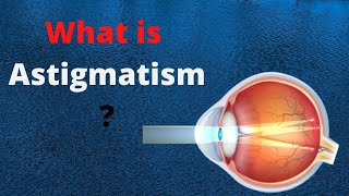 what is myopia, hyperopia and astigmatism with Dr. Carter- By Sight Givers MPG