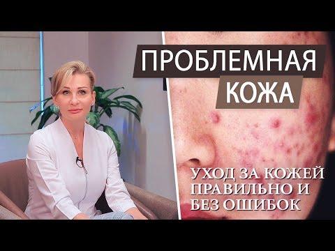 Чистка и уход за кожей. Что делать и как избавиться от прыщей и акне. Проблемная кожа лица