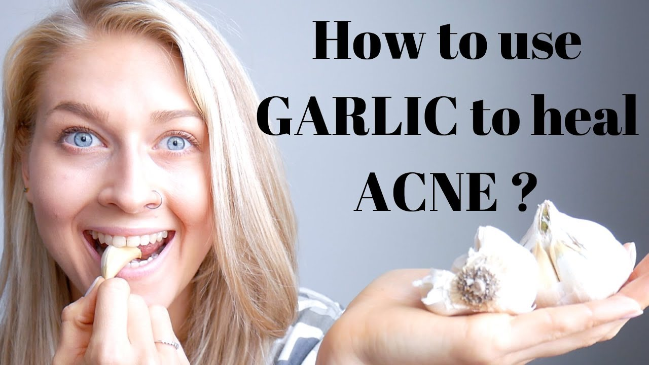 6 garlic benefits for acne. how to use garlic to heal acne