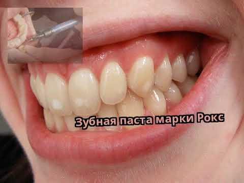 Зубная паста марки Рокс