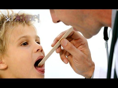 Гнойная ангина лечение - Здоровье - Lidernews