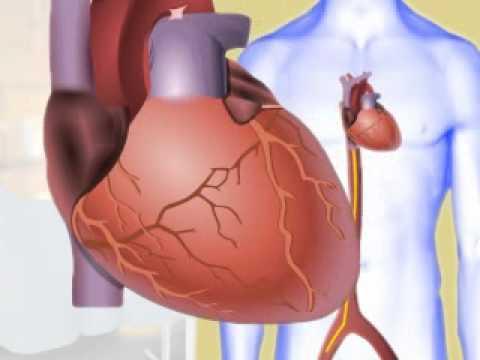 Coding for Electrophysiology & Cardiac Rhythm Management