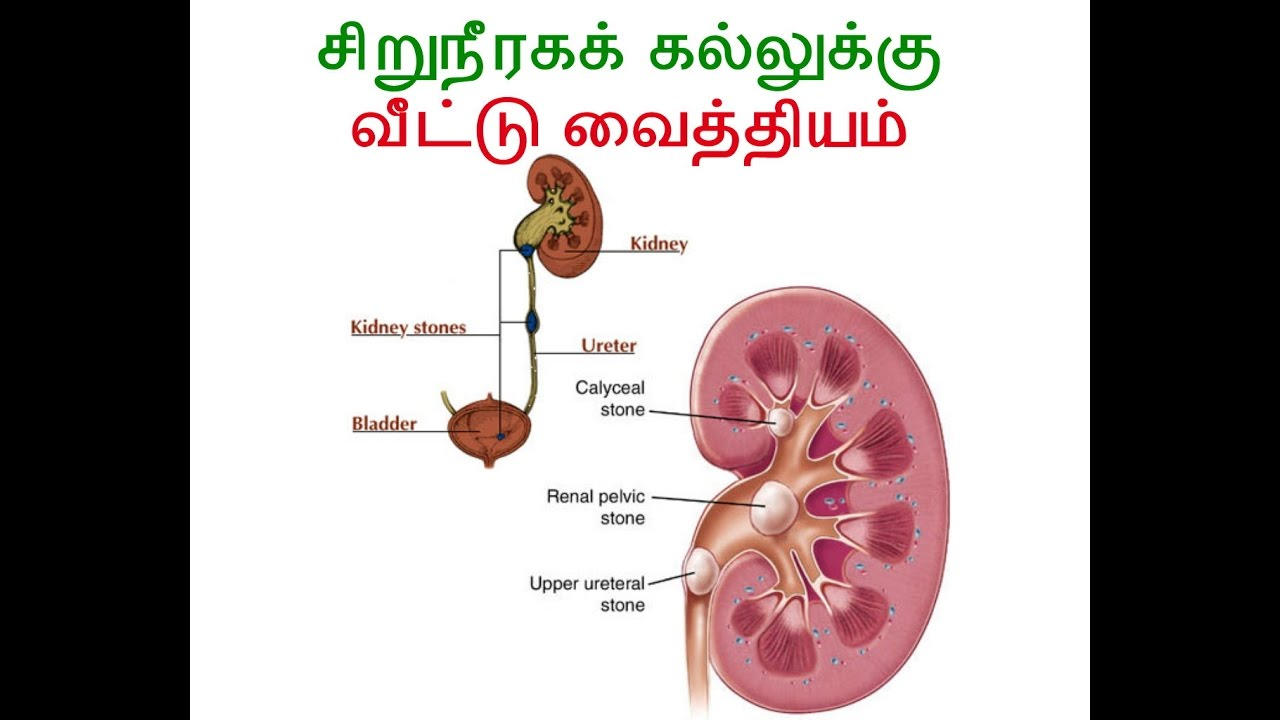 Home remedy for Kidney stones -In Tamil - YouTube