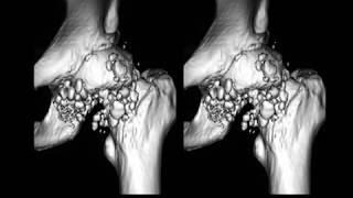térd chondromatosis kezelés