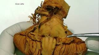 Cerebellum - gross anatomy