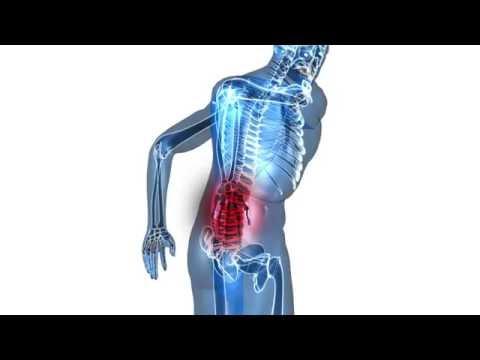 hqdefault - Sciatica Knee Pain Running