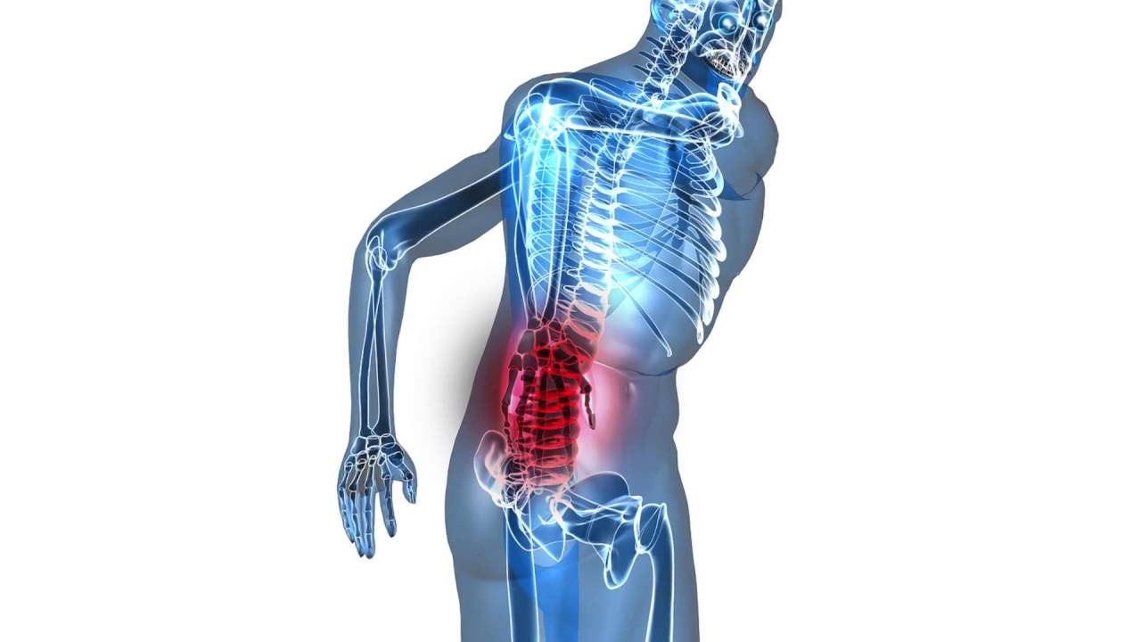 Back Pain Linked to Knee Pain - YouTube