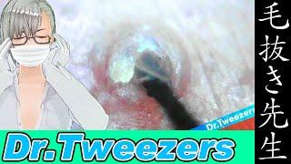 364 [200x Zoom]  Dr. tweezers 毛抜き先生の角栓や毛根
