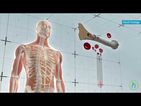 Potential Treatment for Bone Marrow Disorders