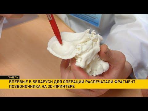 Фрагмент позвоночника для операции распечатали на 3D-принтере впервые в Беларуси