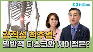 강직성 척추염, 일반적 디스크와 차이점은?