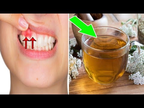 These 5 Effective Home Remedies Will Fix Receding Gums | Natural Health