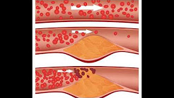 cholesterol medications | New Drug May Help Lower 'Bad' Cholesterol Beyond Statins