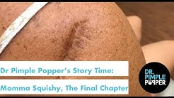 Dr. Pimple Popper's Weekly Story Time: Momma Squishy, The Final Chapter