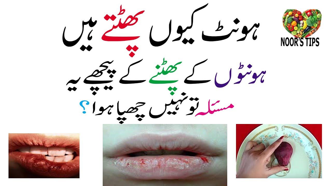 Download phate honton ka ilaj | | corner lips cracked treatment ||honto ka khushk hona|| hont phatne ka ilaj