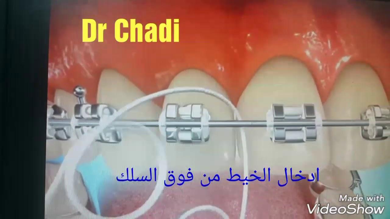 طريقة استخدام الخيط لتنظيف الاسنان مع وجود التقويم Youtube