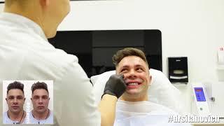 Углы нижней челюсти + Аугментация скул / Dr Rinat Sitanovich